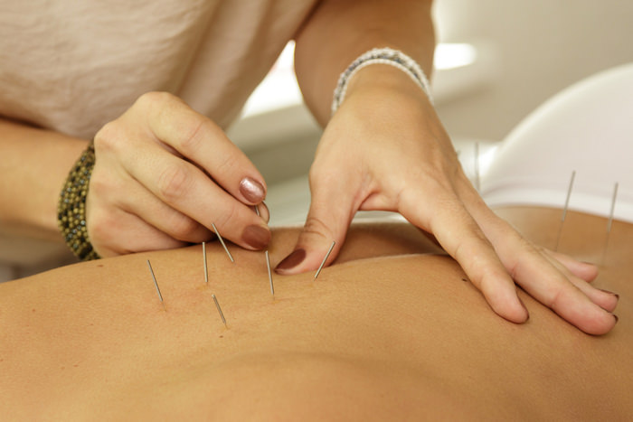 Acupuncture and Osteopathy